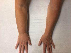 Oedeemfysiotherapie bij lymfoedeem arm