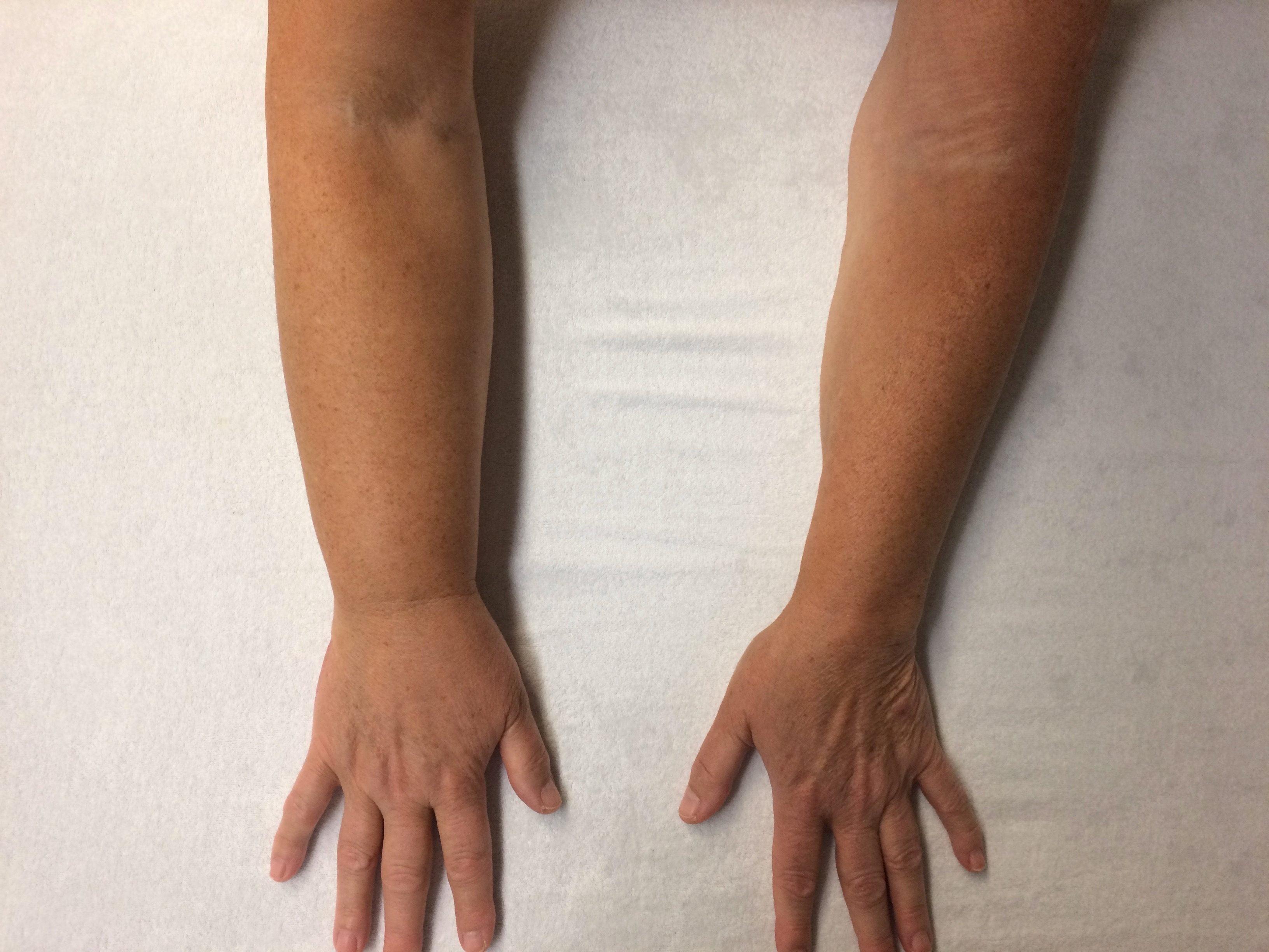 Oedeemfysiotherapie bij praktijk brouwersgracht in for Behandeling oedeem